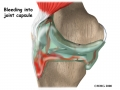 knee_acl_diagnosis01